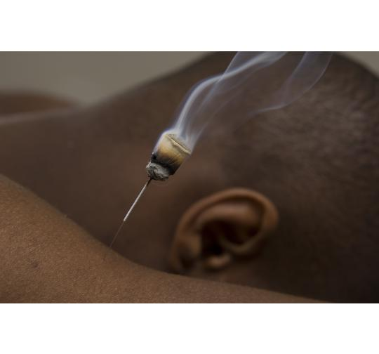 Moxa and Moxibustion